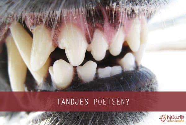 blog tanden