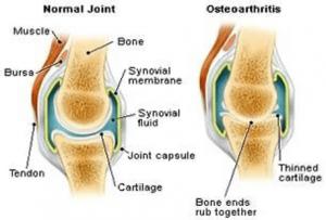 Normaal gewricht en gewricht met artrose